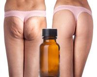 Anti Cellulite Massage Oils