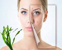 Anti-Acne Seaweed Facial creams and Treatments